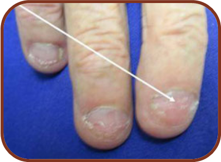 What your Nails Speak about your Health | CiplaMed